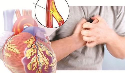 Mối liên quan giữa béo phì và bệnh tim mạch