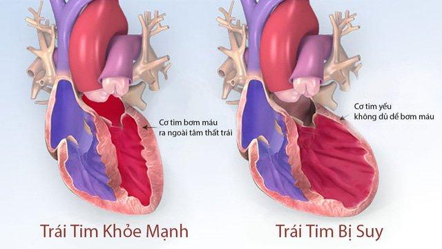 Trái tim bình thường và trái tim khi bị suy tim